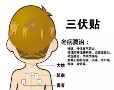江西通报儿童三伏贴现不良反应主因:使用老姜、提高酒精浓度